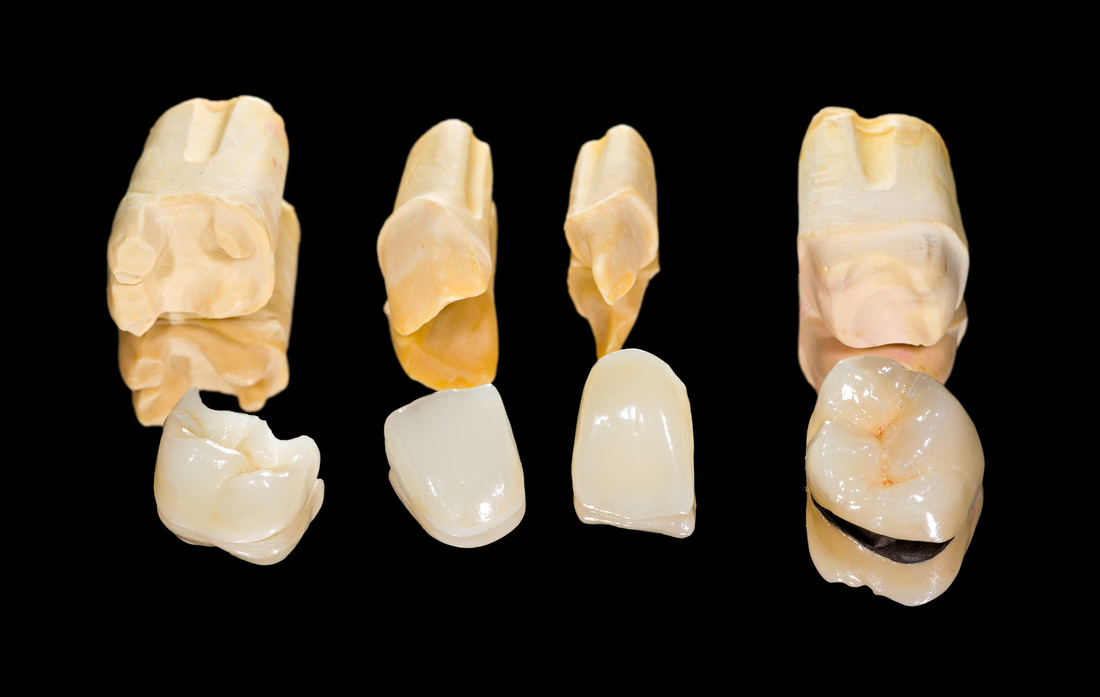 Private dental crowns